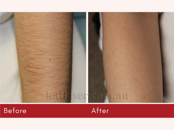Before After HAIR REMOVAL 4