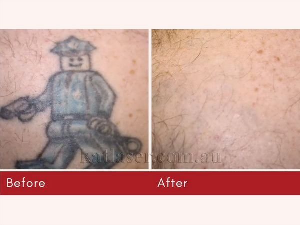Before After TATTOO REMOVAL 4